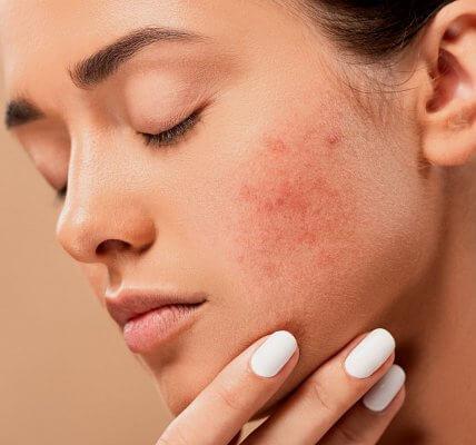 kosmetyki do cery z trądzikiem